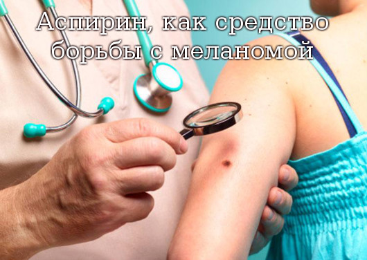 меланома лечение