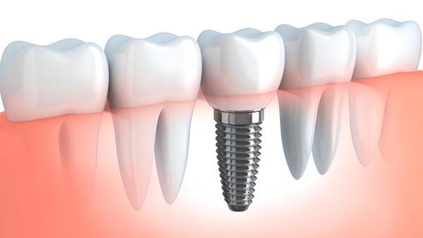 Хирургическая стоматология - комплекс стоматологических услуг