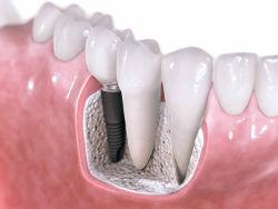 Показания для имплантации зубов