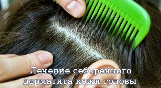 Лечение себорейного дерматита кожи головы