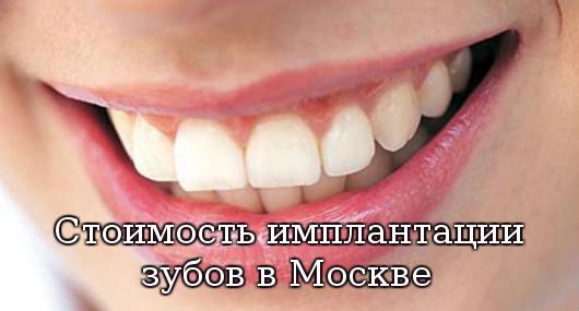 имплантации зубов